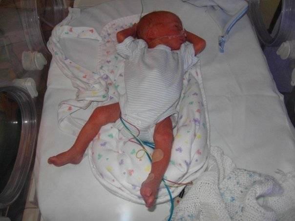 baby-in-incubator