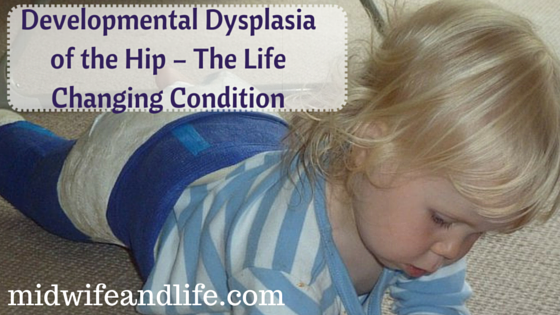 Developmental Dysplasia of the Hip – The Life Changing Condition