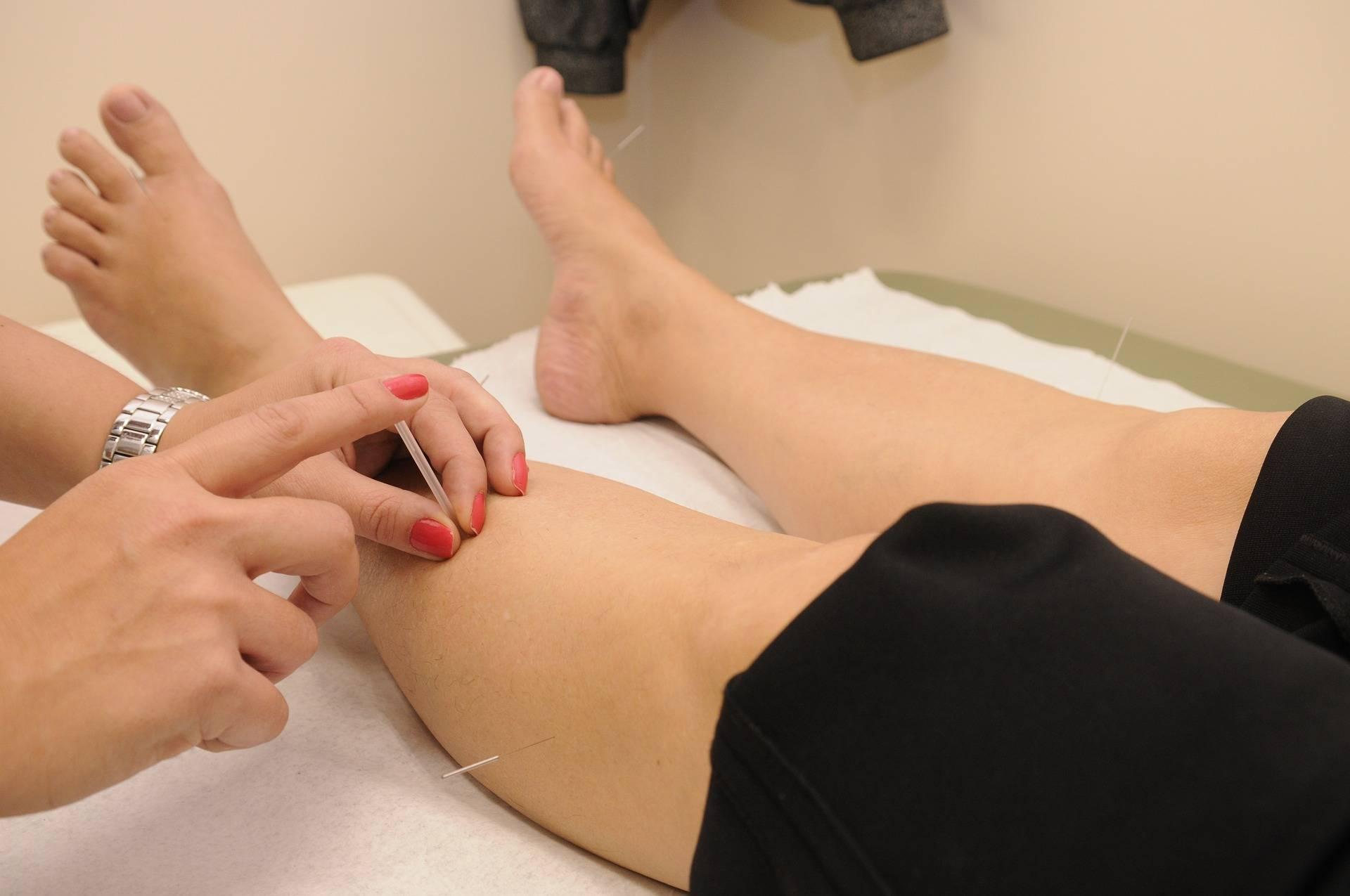 acupuncture-fertility-pregnant-ttc