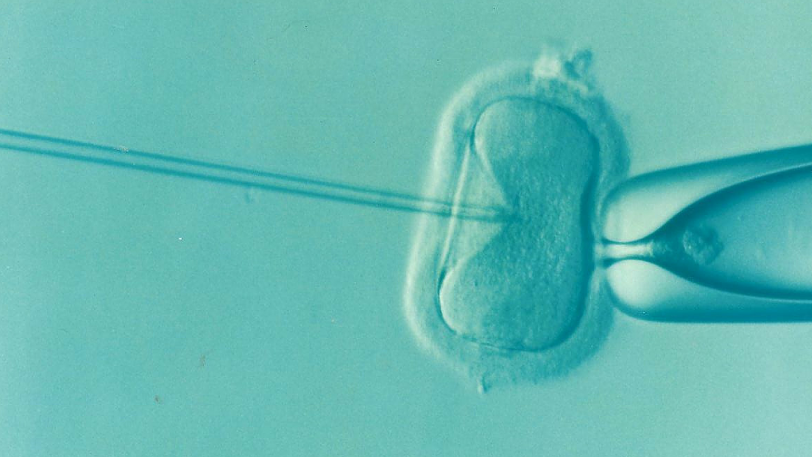 What Are Your Options If IVF Doesn't Work?