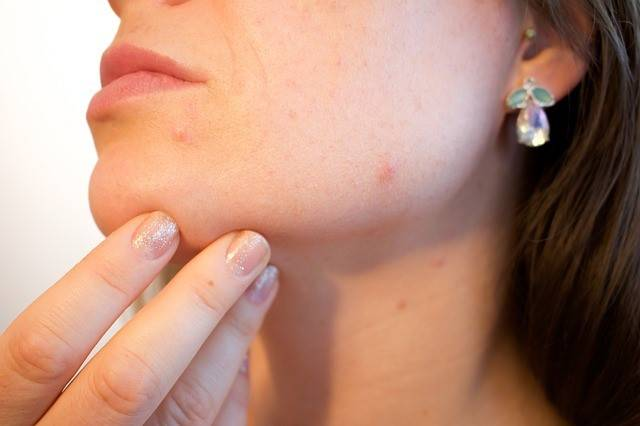 woman with spots on chin. Find remedies for pregnancy acne